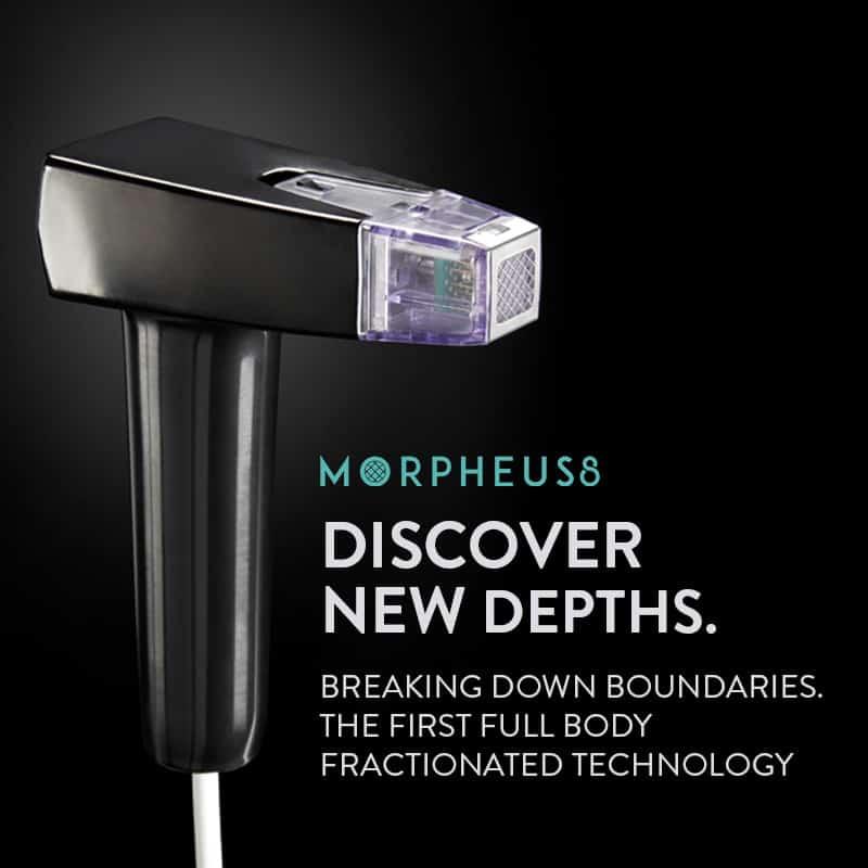 morpheus8 how does it work