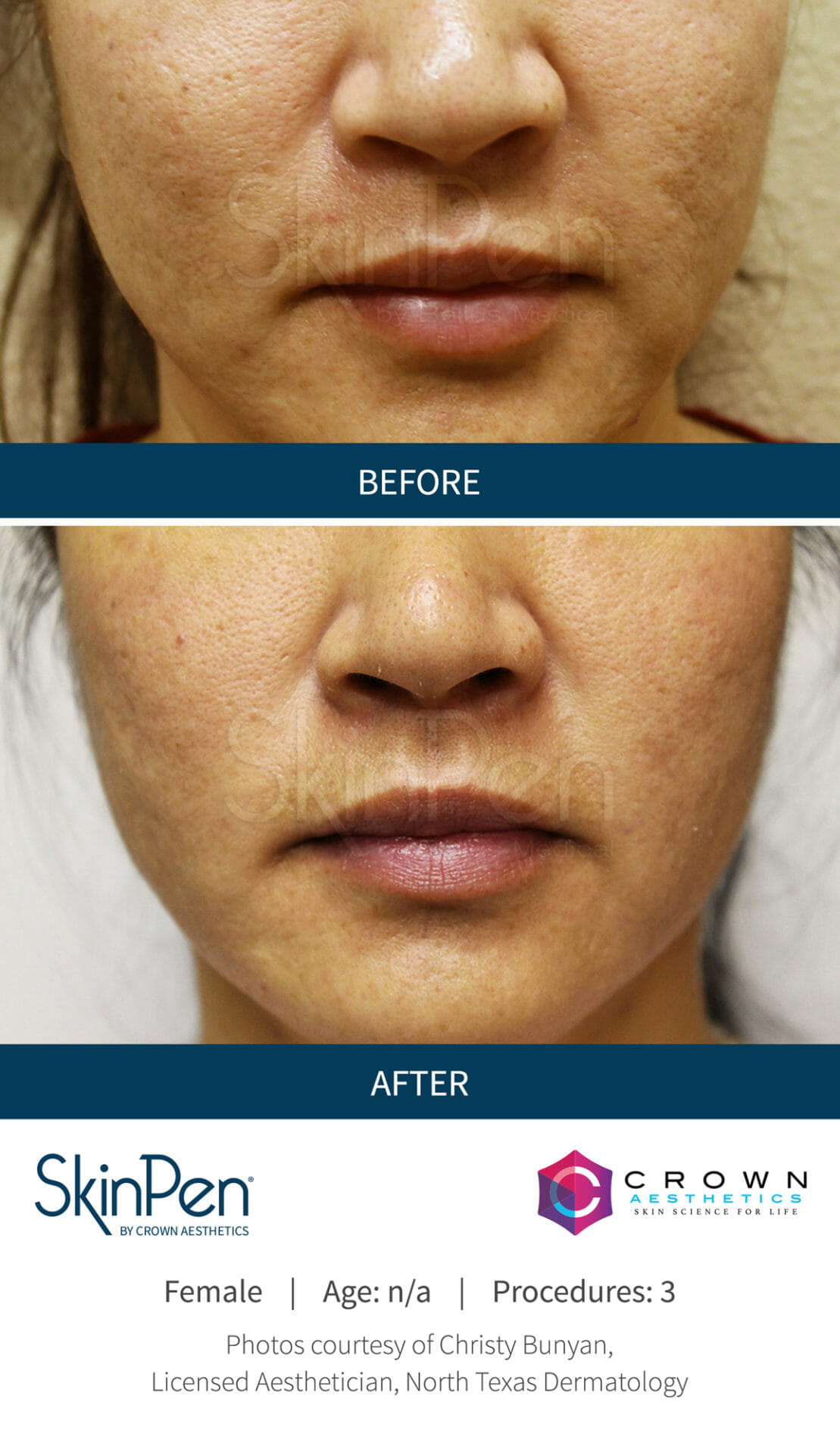 Before-After-Microneedling-Skinpen-Chicago (2)